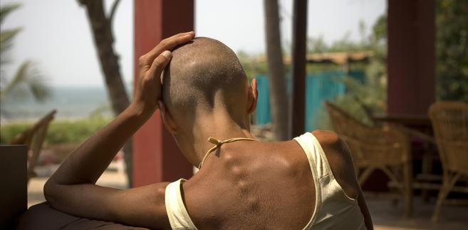 łysienie kobieta włosy